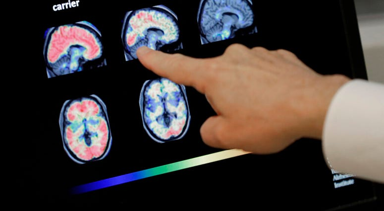 FILE -Dr. William Burke goes over a PET brain scan at Banner Alzheimers Institute in Phoenix. The drug company Biogen Inc. says it will seek federal approval for a medicine to treat early Alzheimer's disease. (AP Photo/Matt York, File)