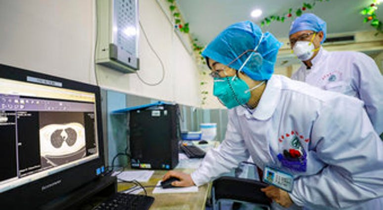 Doctors look at a CT scan of a patient at a hospital in Wuhan in central China's Hubei Province, Thursday, Jan. 30, 2020. China counted 170 deaths from a new virus Thursday and more countries reported infections. (Chinatopix via AP)