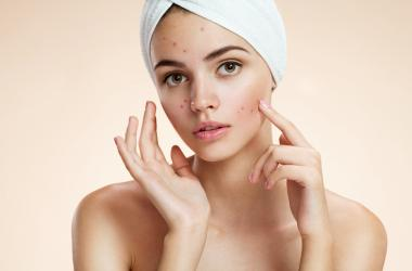 Model acne