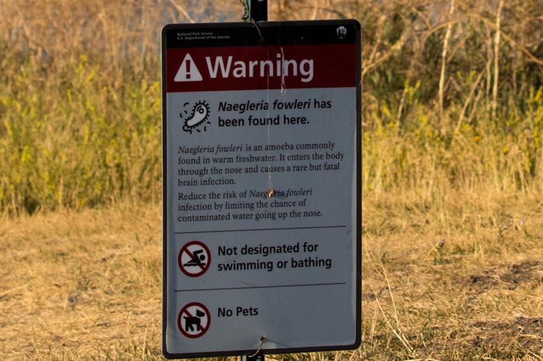 Naegleria fowleri warning sign