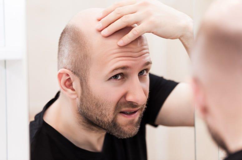 Bald_Man