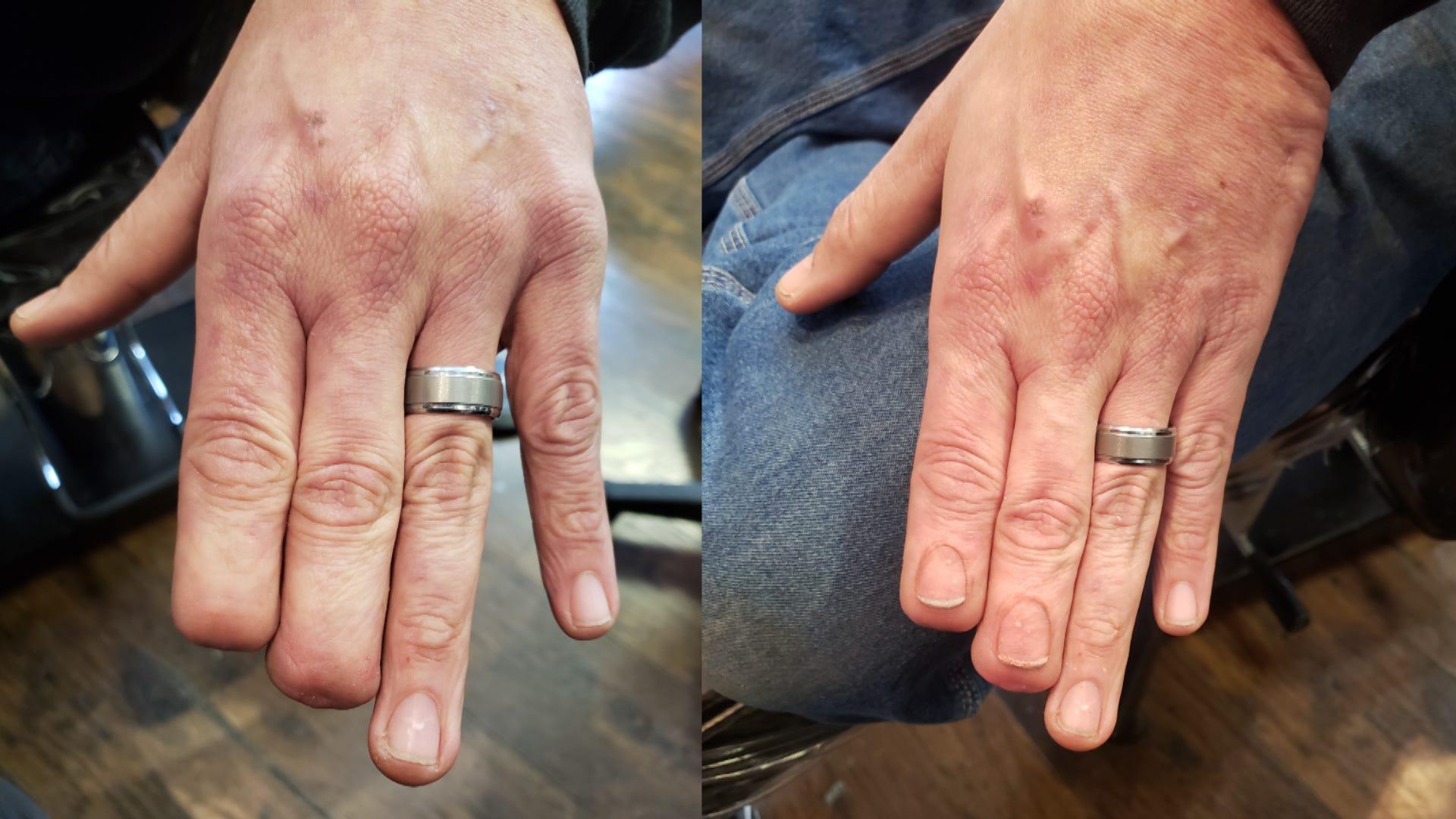 Tattoo Artist Draws Realistic Fingernails For Man With Amputation