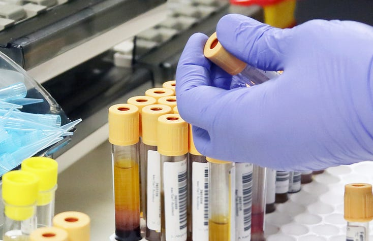 urine and blood test
