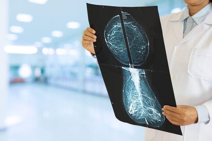 doctor holding mammogram