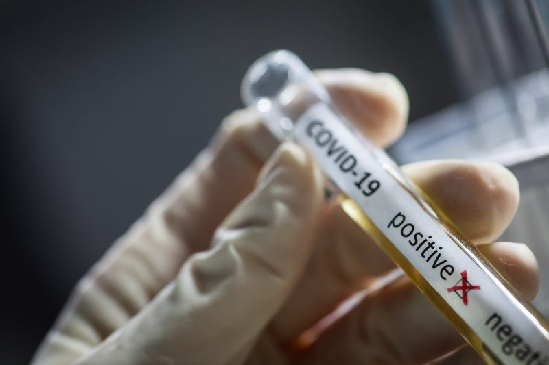 Conceptual photograph of a doctor's hands holding and looking at a test tube while with positive samples for the presence of coronavirus (COVID-19).