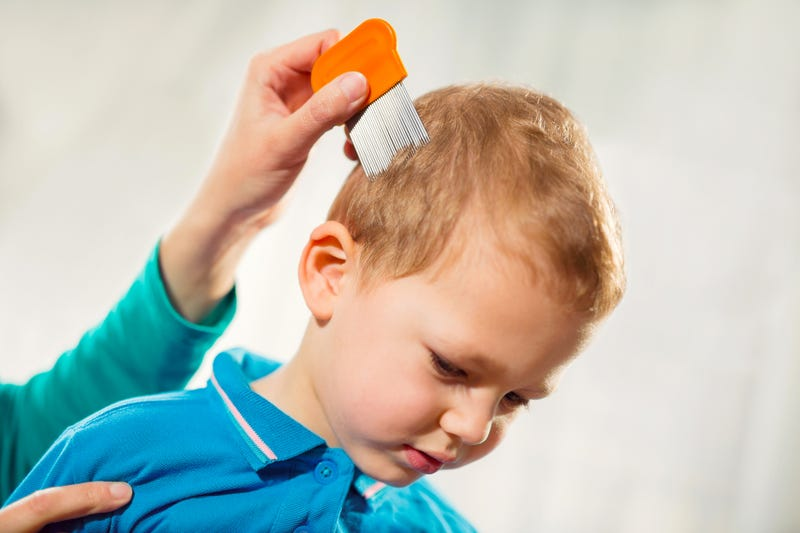 Child being checked for lice stock photo.