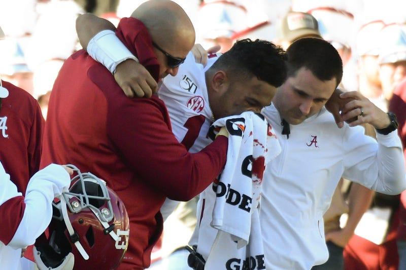 Alabama quarterback Tua Tagovailoa's future in football is in doubt.