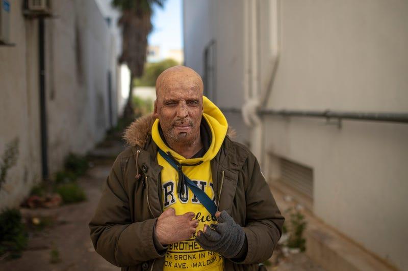 Tunisia The Injured Photo Gallery