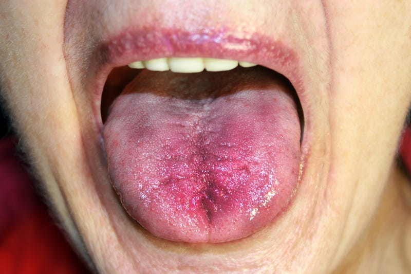 Inflamed tongue