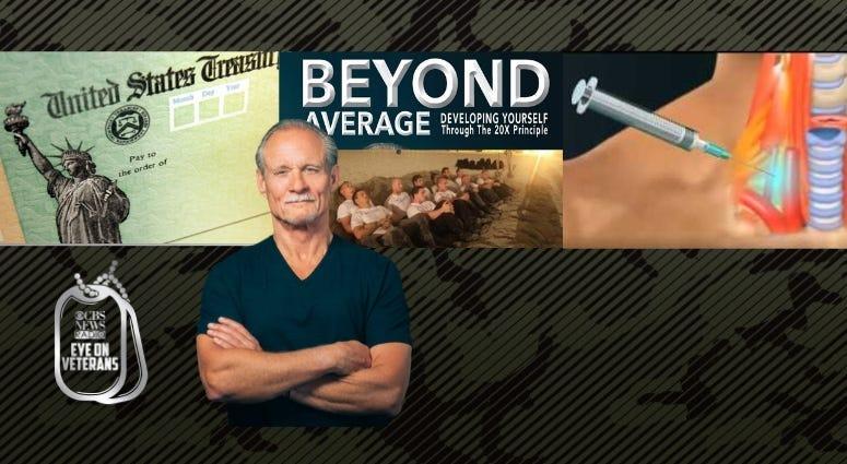 USAF vet and badass athlete Robert Owens, SGB neck injection treats PTSD and coronavirus Stimulus Checks