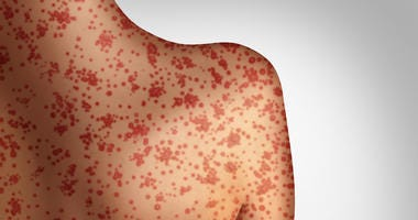 Measles concept as a deadly outbreak immunize,disease and viral illness as a contagious chickenpox or a skin rash in a 3D illustration style.