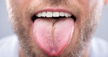 tongue dgs
