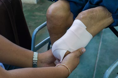 Bandaging, Leg, Knee, Amputation