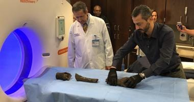 Mummified bones of Queen Nefertari prepare to be scanned by CT.