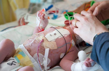 Child intensive care, mother and son