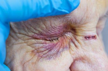 Elderly woman's injured eye & nurse's fingers