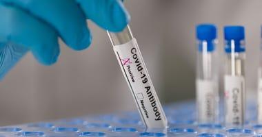 Dillons announces coronavirus rapid antibody testing at all pharmacy locations