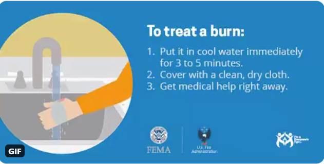 Burn treatment