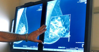 A new study suggests that adding MRIs to mammograms to screen women with very dense breasts may find more cancers but also gives a lot of false alarms.