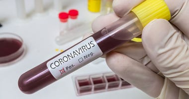 Coronavirus 2019-nCOV analysis