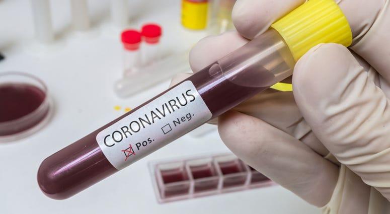 Coronavirus 2019-nCOV analysis