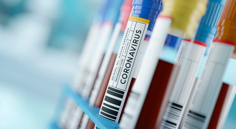 coronavirus, hospital lab