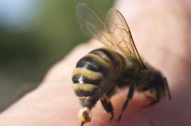 Bee, Sting, Finger