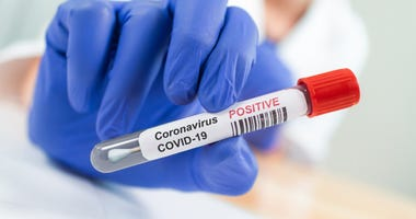 Coronavirus Infected Swab Test Sample in Doctor Hands. COVID-19 Epidemic and Virus Outbreak.