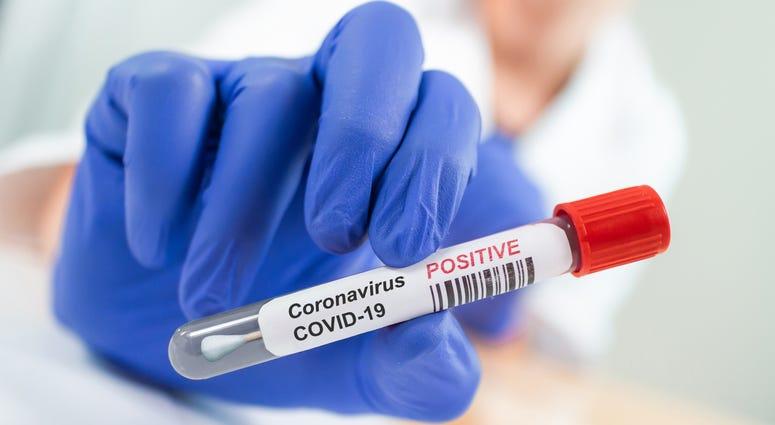 Coronavirus Infected Swab Test Sample in Doctor Hands. COVID-19 Epidemic and Virus Outbreak.
