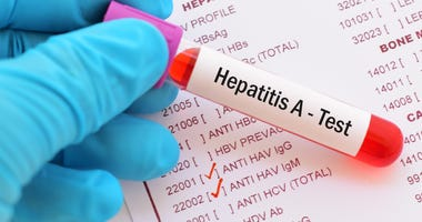 Blood sample for hepatitis A virus (HAV) test