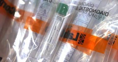 Coronavirus testing kits