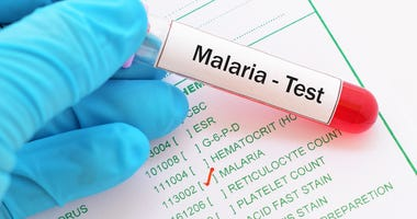 Malaria test results.