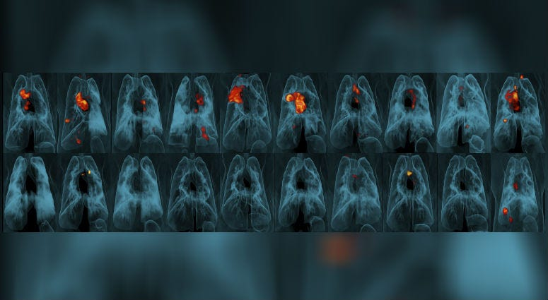 This image provided by the University of Pittsburgh School of Medicine and the National Institute of Allergy and Infectious Diseases shows a collection of lung scans of 20 monkeys who were exposed to tuberculosis after receiving different forms of a TB va