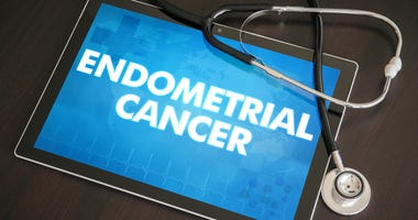 endometrial cancer
