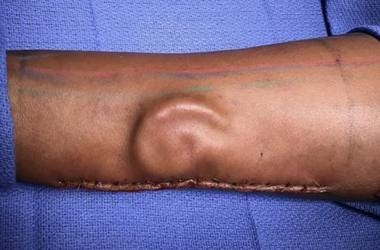 Plastic surgeons harvested cartilage from Burrage's ribs to create a new ear and then grew it under the skin of her forearm.