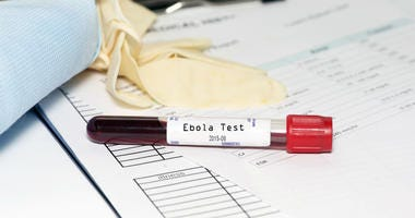 Ebola test