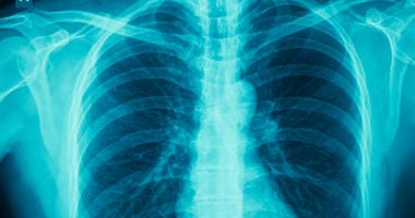 COPD, chronic obstructive pulmonary disease