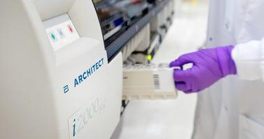 Abbott Labs New Test Antibodies