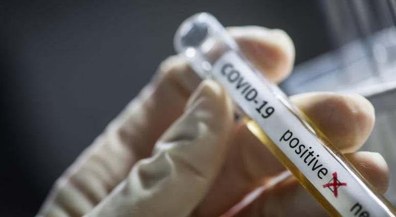 The US Surpasses 100,000 Deaths From Coronavirus