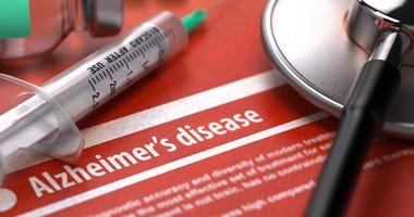 Diagnosis - Alzheimer's disease.