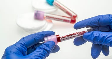 Covid-19 coronavirus test stock photo