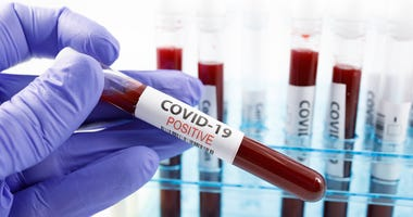 Test tubes rack with blood sample for covid-19 virus, on white background with copy space. - stock photo