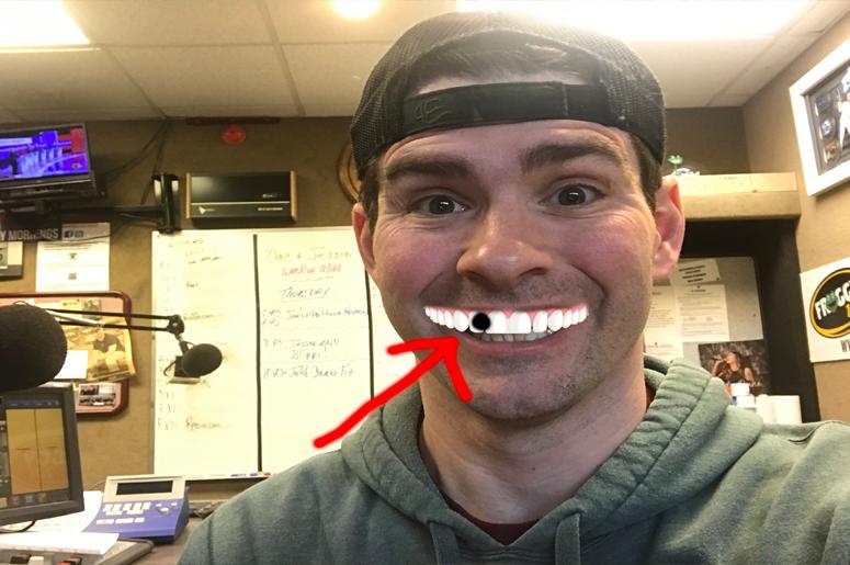 Poppy seeds in the teeth!