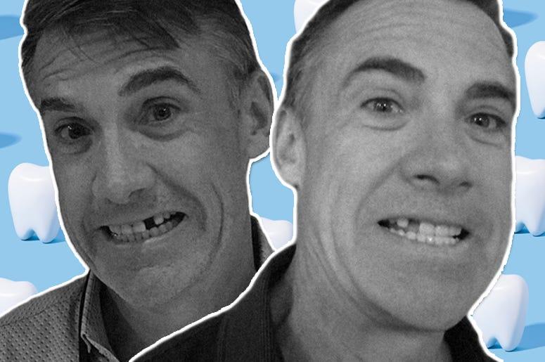 matt harris missing tooth 2020