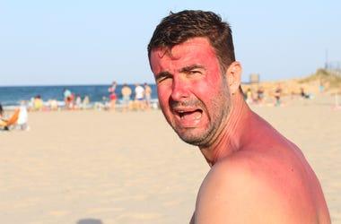 Sunburn Man On Beach
