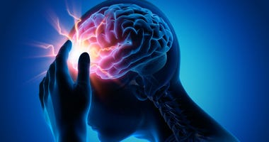Migraines-GettyImages-1156927795.jpg
