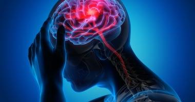 stroke-GettyImages-1168179082.jpg