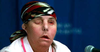 A US First, New Hampshire Woman Gets Second Face Transplant
