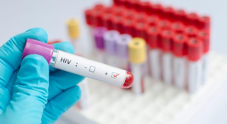 U.N.: COVID-19 pandemic hurting progress in fighting AIDS