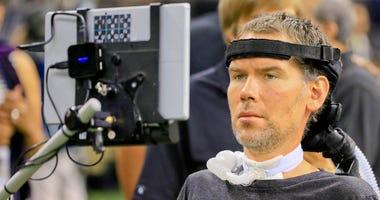 Despite disease, Gleason it tireless advocate for ALS stricken